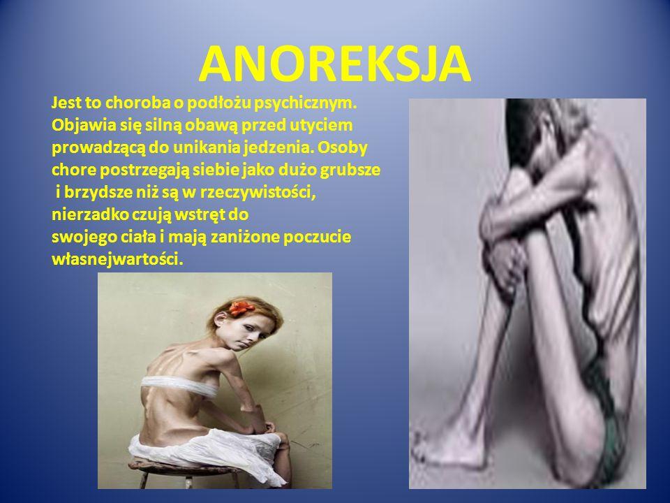 ANOREKSJA Jest to choroba o podłożu psychicznym. Objawia się silną obawą przed utyciem prowadzącą do unikania jedzenia. Osoby chore postrzegają siebie