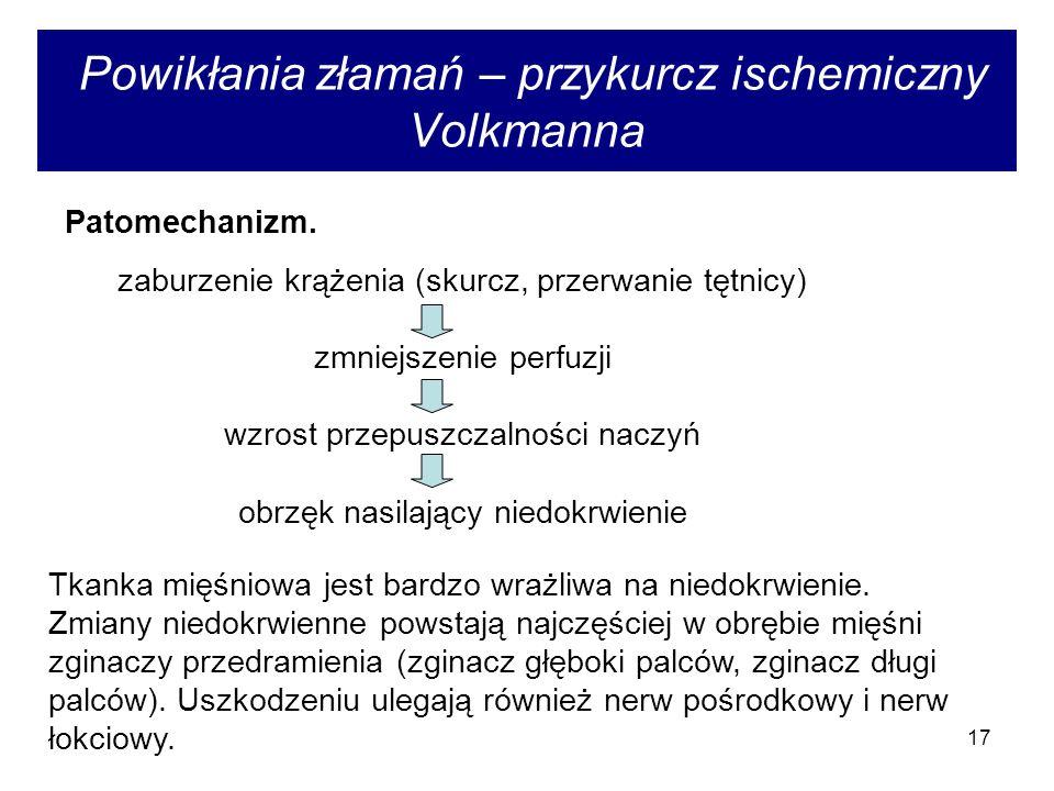 17 Powikłania złamań – przykurcz ischemiczny Volkmanna zaburzenie krążenia (skurcz, przerwanie tętnicy) zmniejszenie perfuzji wzrost przepuszczalności naczyń obrzęk nasilający niedokrwienie Patomechanizm.