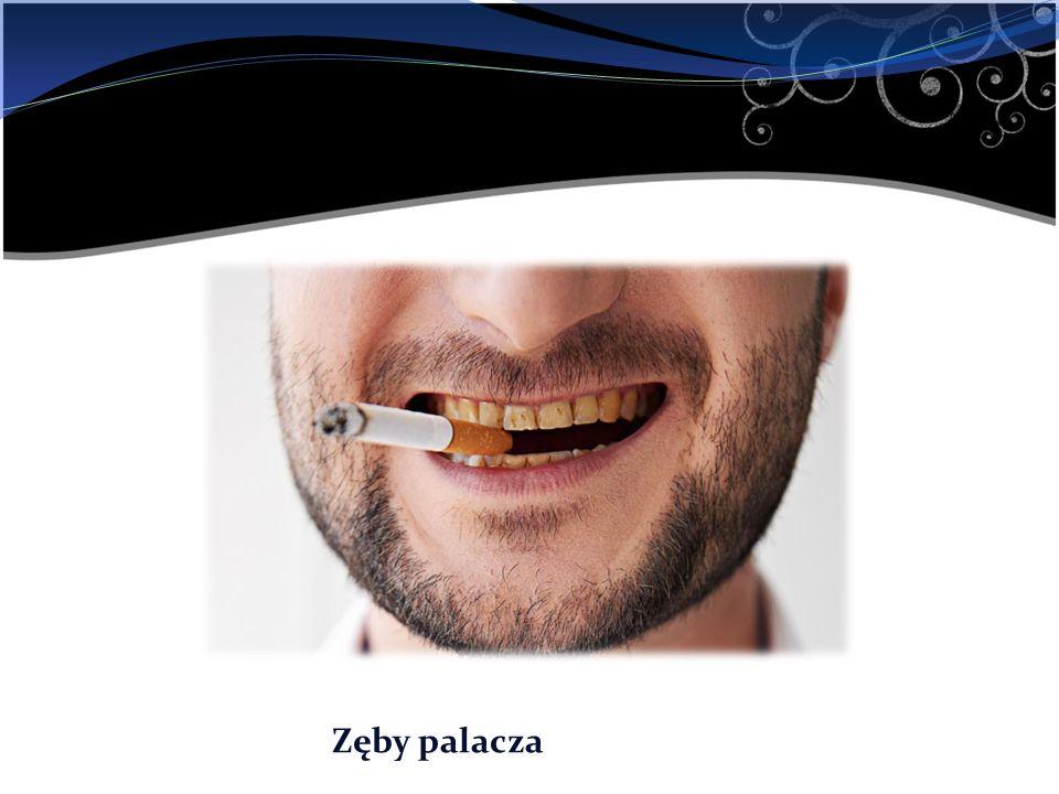 Zęby palacza