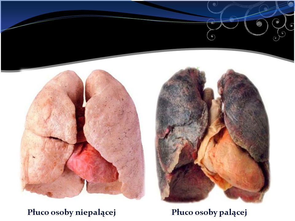 Płuco osoby niepalącejPłuco osoby palącej