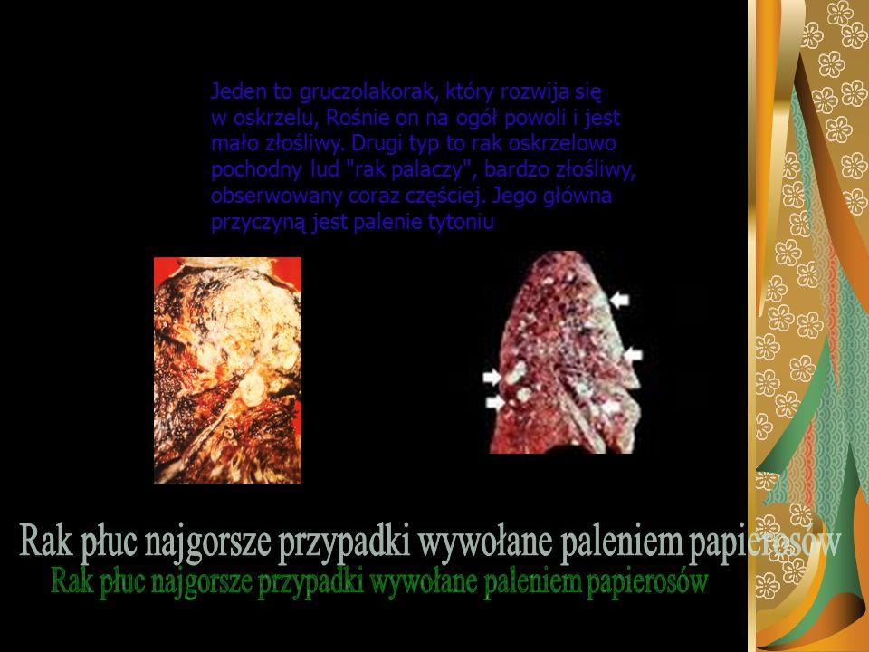Rak jamy ustnej powoduje bolesną zmianę w obrębie warg, dziąseł lub wewnętrznej części jamy ustnej, która łatwo krwawi i nie chce się zagoić wyczuwaln