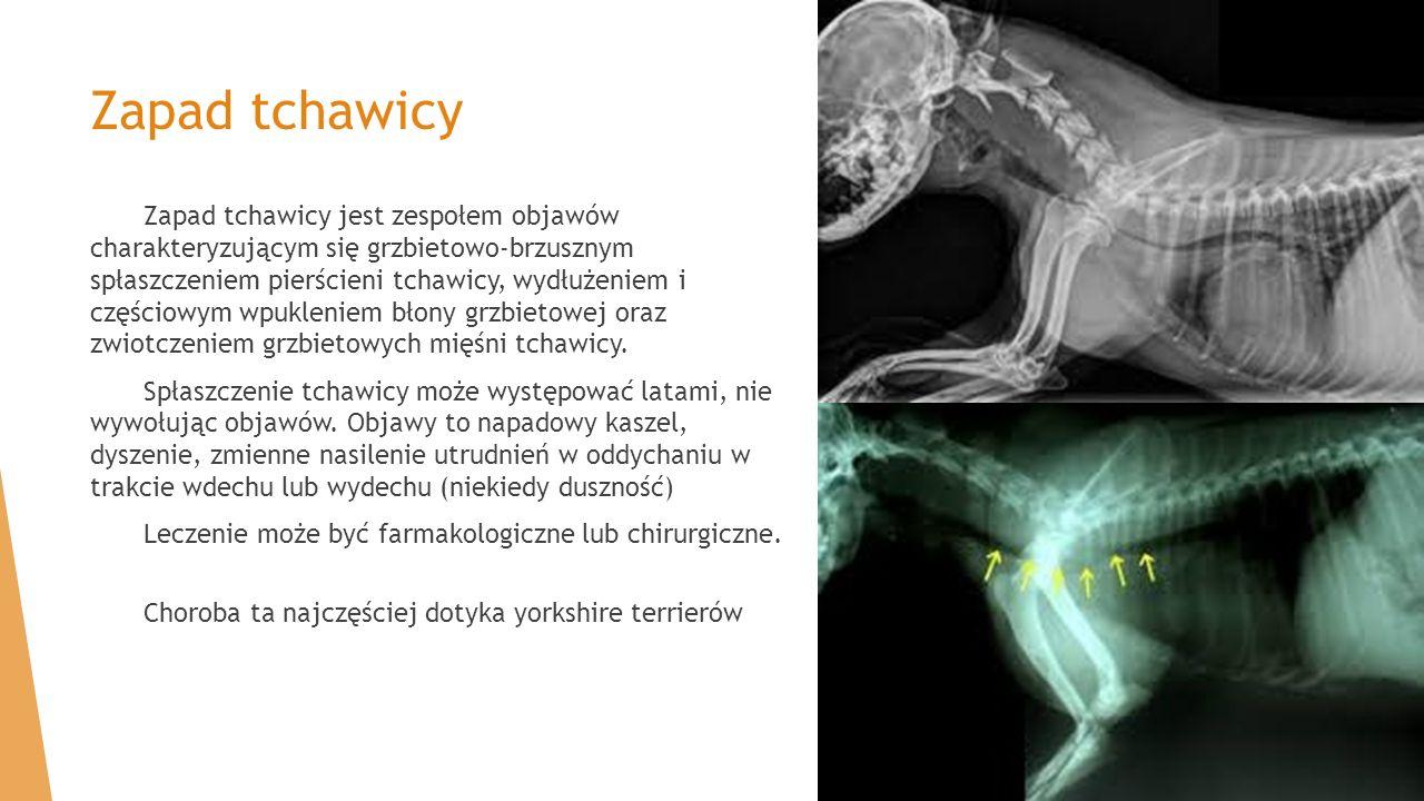 Zapad tchawicy Zapad tchawicy jest zespołem objawów charakteryzującym się grzbietowo-brzusznym spłaszczeniem pierścieni tchawicy, wydłużeniem i części