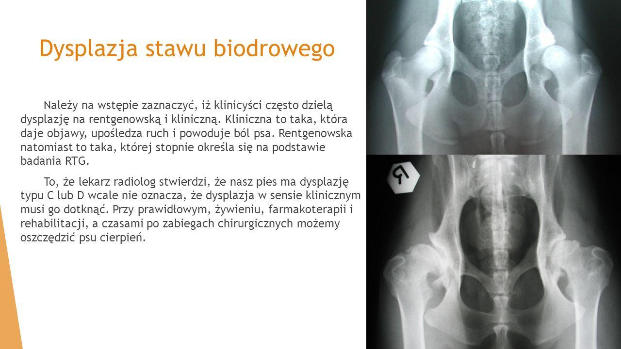 Należy na wstępie zaznaczyć, iż klinicyści często dzielą dysplazję na rentgenowską i kliniczną. Kliniczna to taka, która daje objawy, upośledza ruch i