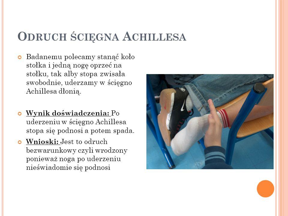 O DRUCH ŚCIĘGNA A CHILLESA Badanemu polecamy stanąć koło stołka i jedną nogę oprzeć na stołku, tak alby stopa zwisała swobodnie, uderzamy w ścięgno Achillesa dłonią.