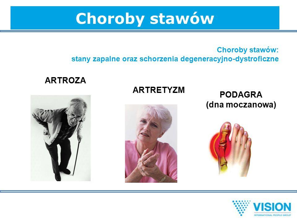 Choroby stawów Choroby stawów: stany zapalne oraz schorzenia degeneracyjno-dystroficzne ARTROZA ARTRETYZM PODAGRA (dna moczanowa)