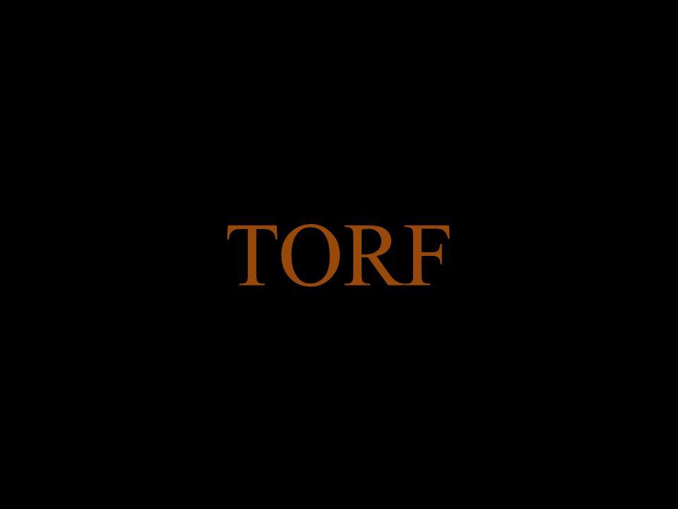 TORF NISKI  Wody przepływowe  Roślinność: trujące olchy itp.