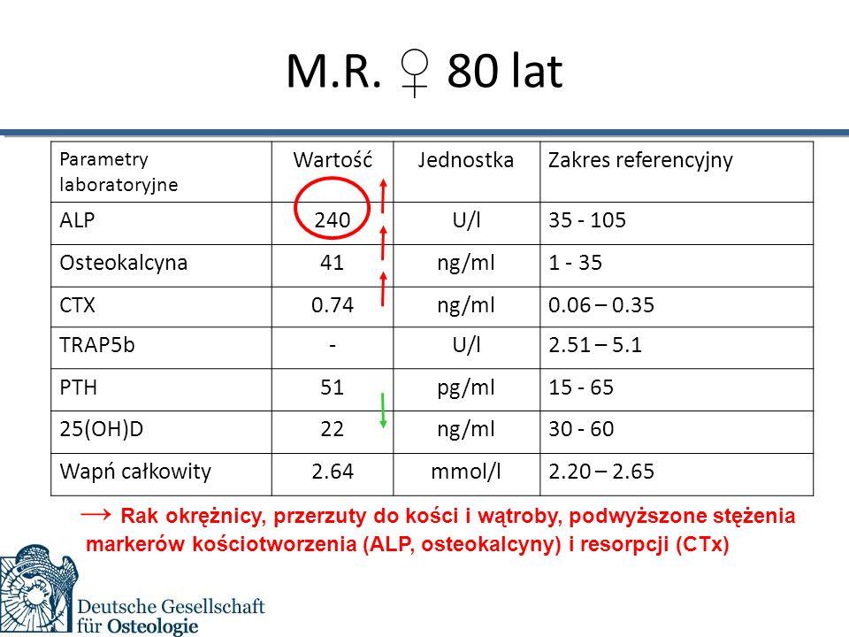 M.R. ♀ 80 lat Parametry laboratoryjne WartośćJednostkaZakres referencyjny ALPALP240U/l35 - 105 Osteokalcyna41ng/ml1 - 35 CTX0.74ng/ml0.06 – 0.35 TRAP5