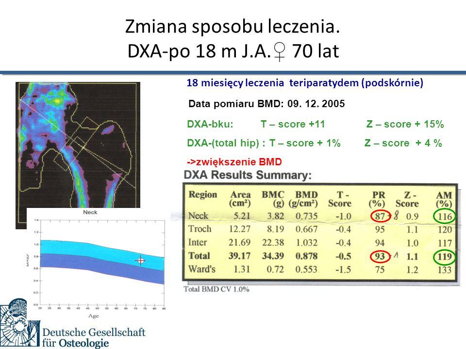 Zmiana sposobu leczenia. DXA-po 18 m J.A. ♀ 70 lat AF Data pomiaru BMD: 09.
