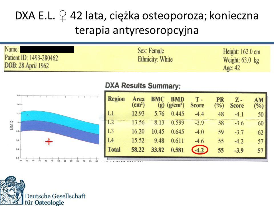DXA E.L. ♀ 42 lata, ciężka osteoporoza; konieczna terapia antyresoropcyjna