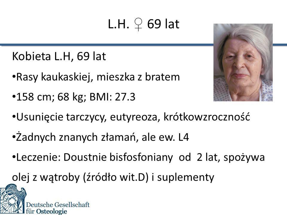 L.H. ♀ 69 lat Kobieta L.H, 69 lat Rasy kaukaskiej, mieszka z bratem 158 cm; 68 kg; BMI: 27.3 Usunięcie tarczycy, eutyreoza, krótkowzroczność Żadnych z