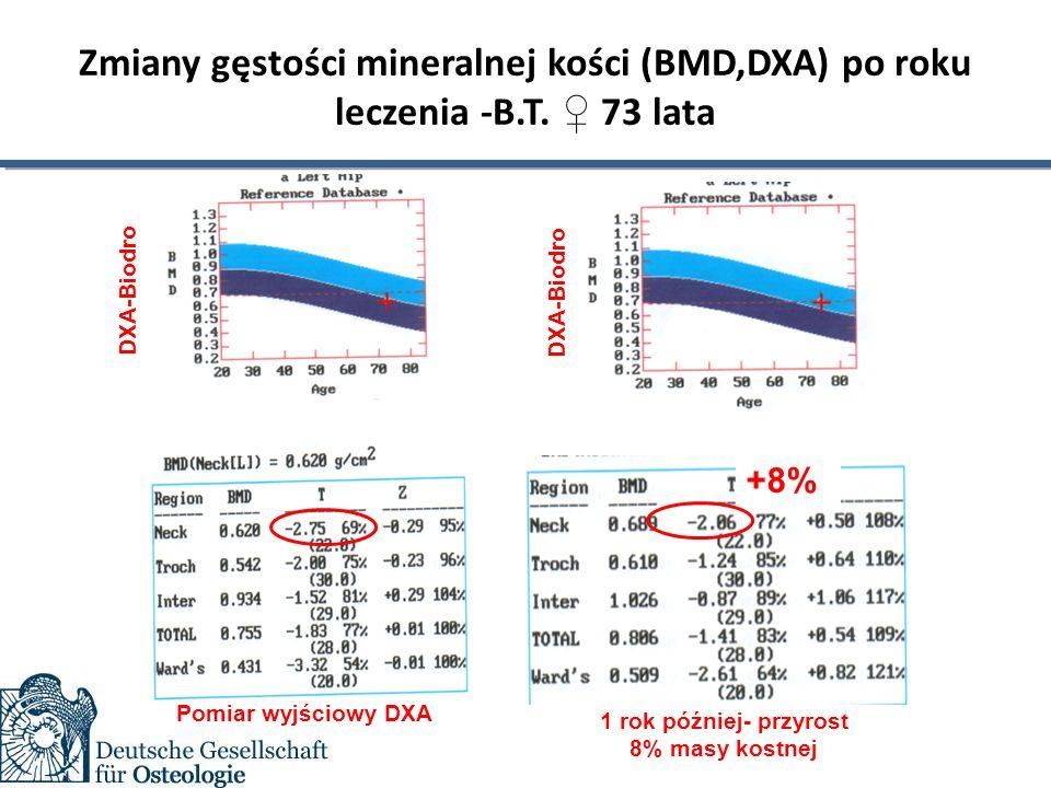 Zmiany gęstości mineralnej kości (BMD,DXA) po roku leczenia -B.T.