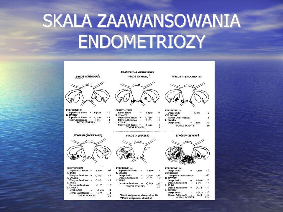 INNE SKALE BIBEROGLU-BEHRMANA VAS / NRS ENZIAN SCORE CGI – C (Clinical Global Impression Score) Bourdel, Systematic Review of endometriosis pain assessment...