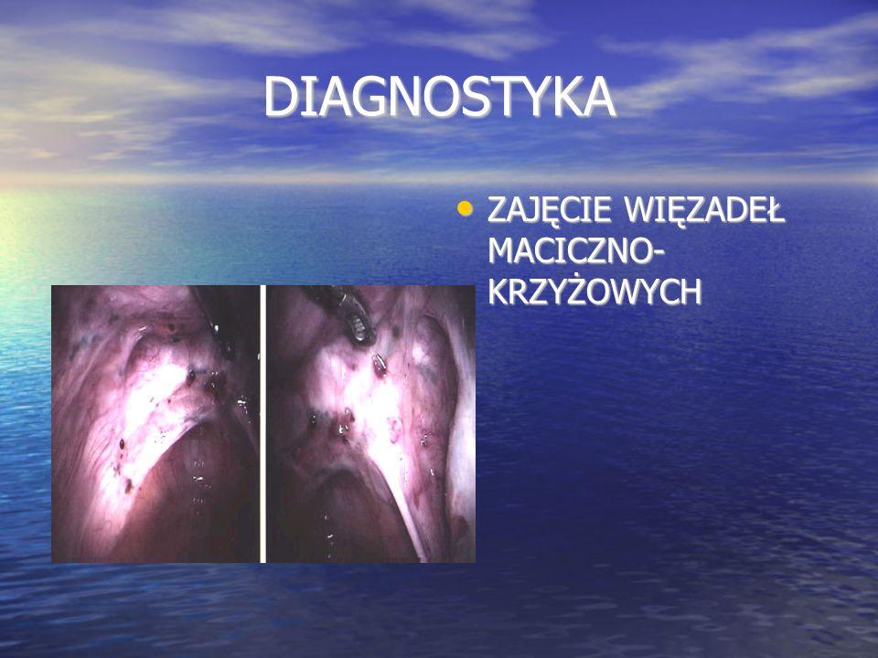 DIAGNOSTYKA Metaanaliza Cochrane: Cochrane Database Syst Rev.