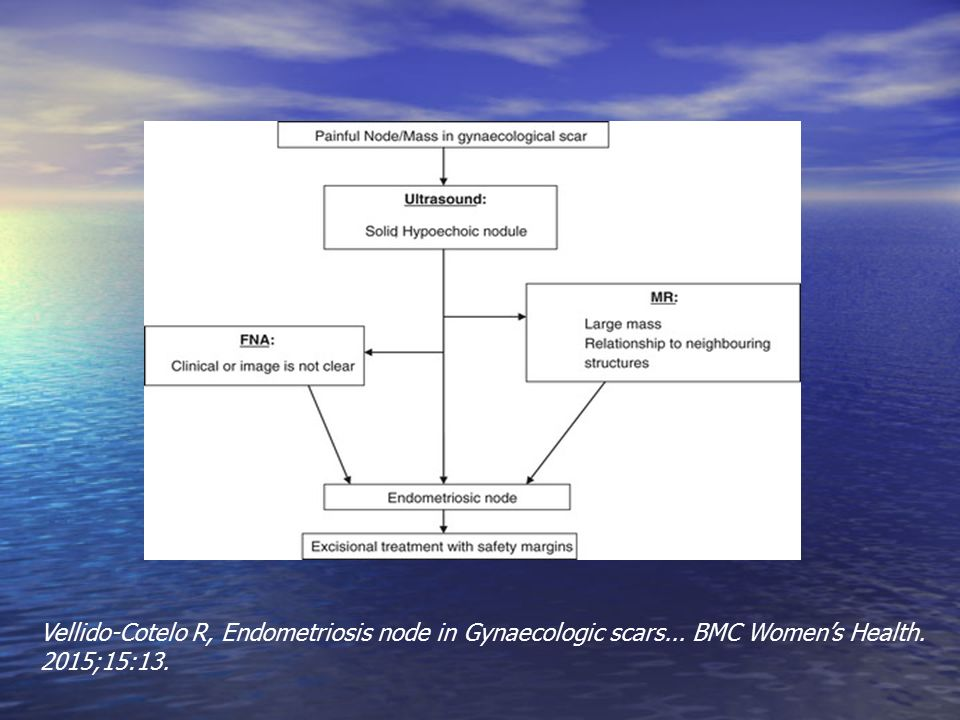 Vellido-Cotelo R, Endometriosis node in Gynaecologic scars... BMC Women's Health. 2015;15:13.