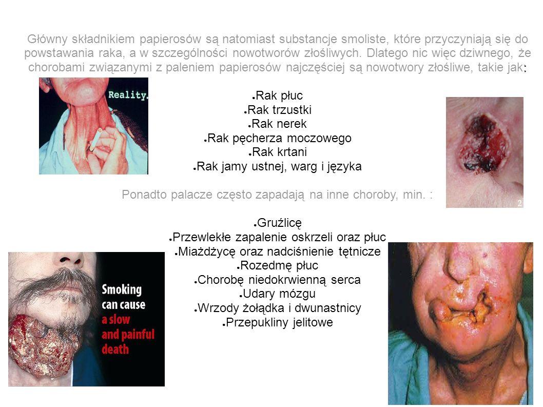 : Główny składnikiem papierosów są natomiast substancje smoliste, które przyczyniają się do powstawania raka, a w szczególności nowotworów złośliwych.