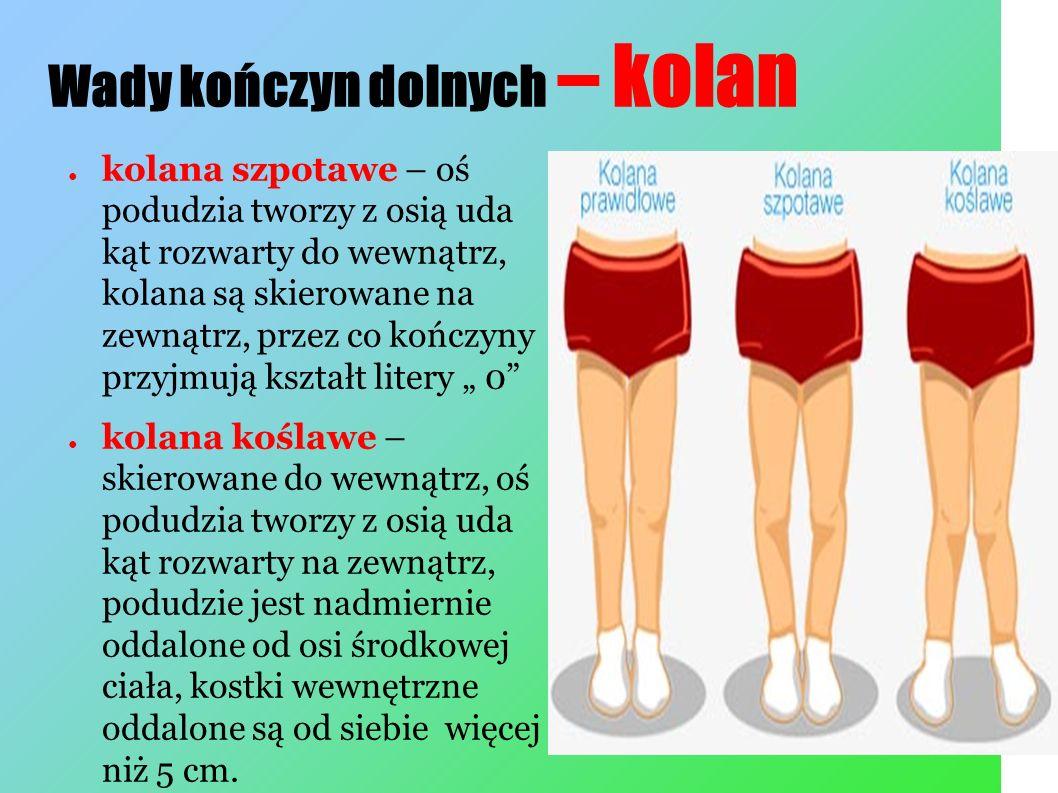 """Wady kończyn dolnych – kolan ● kolana szpotawe – oś podudzia tworzy z osią uda kąt rozwarty do wewnątrz, kolana są skierowane na zewnątrz, przez co kończyny przyjmują kształt litery """" 0 ● kolana koślawe – skierowane do wewnątrz, oś podudzia tworzy z osią uda kąt rozwarty na zewnątrz, podudzie jest nadmiernie oddalone od osi środkowej ciała, kostki wewnętrzne oddalone są od siebie więcej niż 5 cm."""