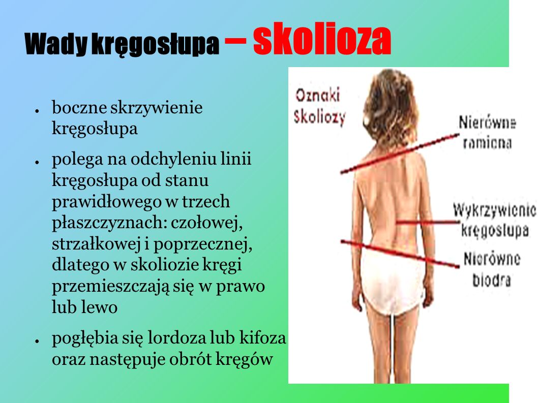 Wady kręgosłupa – skolioza ● boczne skrzywienie kręgosłupa ● polega na odchyleniu linii kręgosłupa od stanu prawidłowego w trzech płaszczyznach: czołowej, strzałkowej i poprzecznej, dlatego w skoliozie kręgi przemieszczają się w prawo lub lewo ● pogłębia się lordoza lub kifoza oraz następuje obrót kręgów