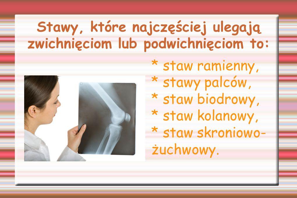 Stawy, które najczęściej ulegają zwichnięciom lub podwichnięciom to: * staw ramienny, * stawy palców, * staw biodrowy, * staw kolanowy, * staw skronio