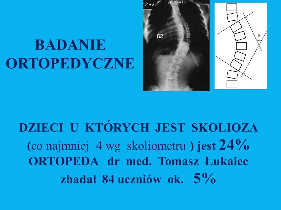BADANIE ORTOPEDYCZNE DZIECI U KTÓRYCH JEST SKOLIOZA (co najmniej 4 wg skoliometru ) jest 24% ORTOPEDA dr med.