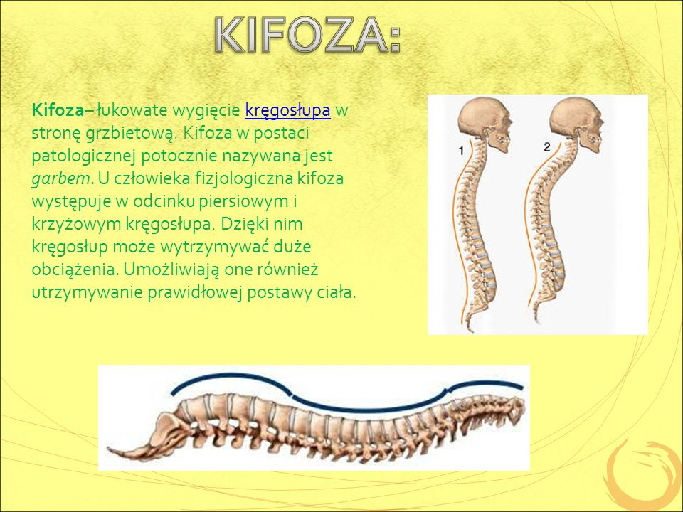 Kifoza– łukowate wygięcie kręgosłupa w stronę grzbietową.