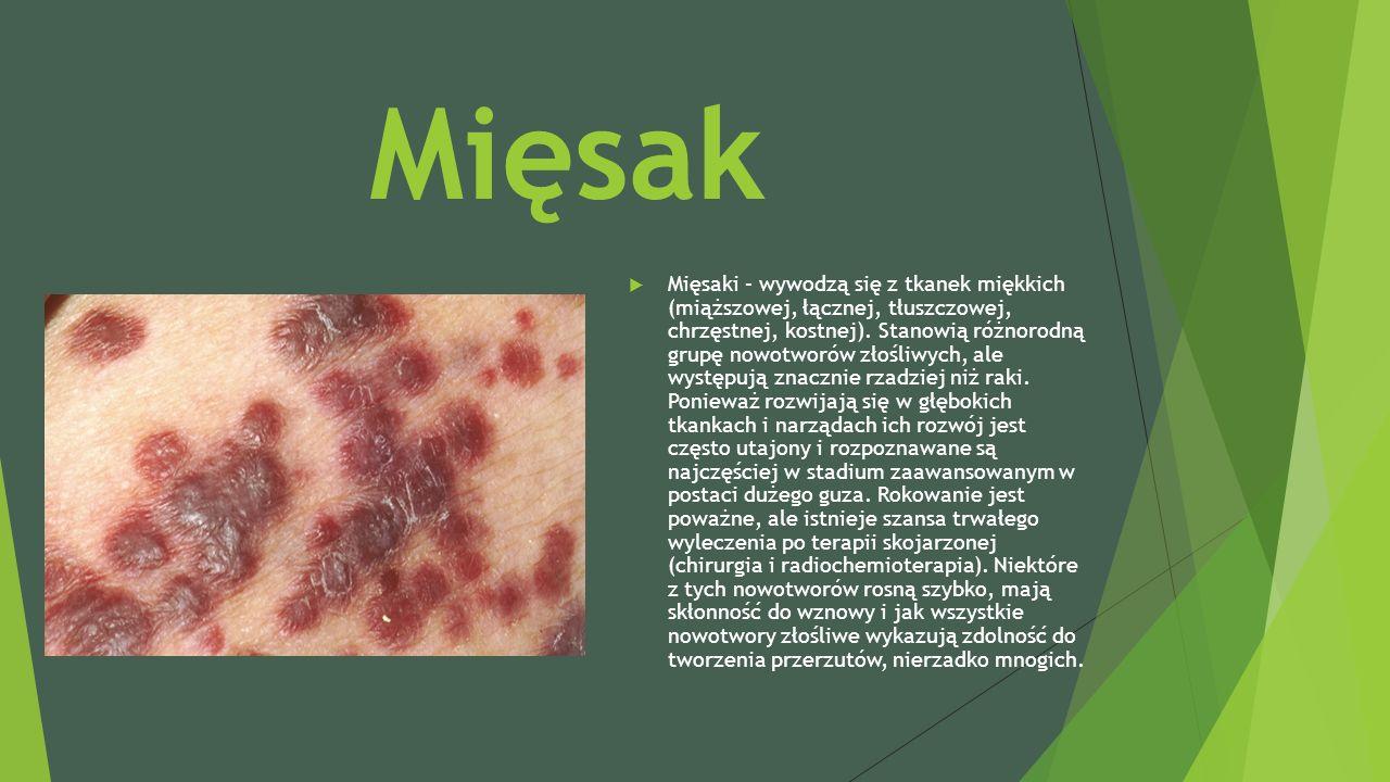 Mięsak  Mięsaki – wywodzą się z tkanek miękkich (miąższowej, łącznej, tłuszczowej, chrzęstnej, kostnej). Stanowią różnorodną grupę nowotworów złośliw