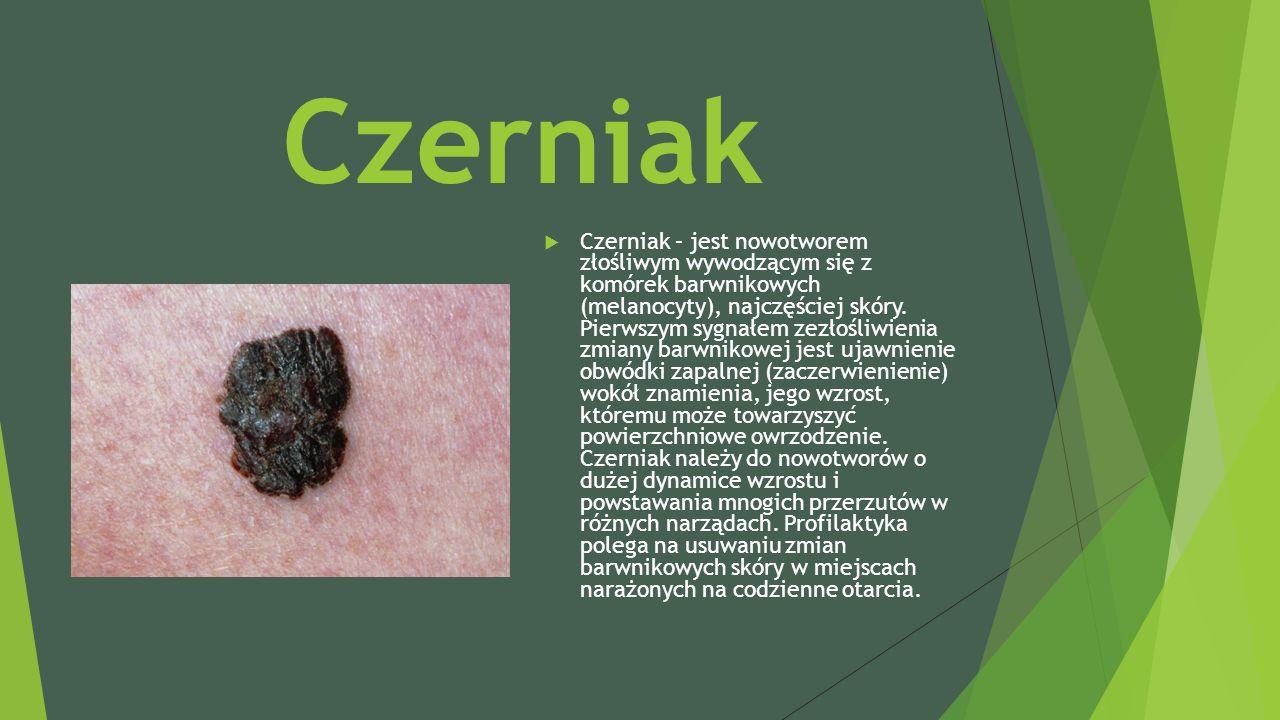 Czerniak  Czerniak – jest nowotworem złośliwym wywodzącym się z komórek barwnikowych (melanocyty), najczęściej skóry.