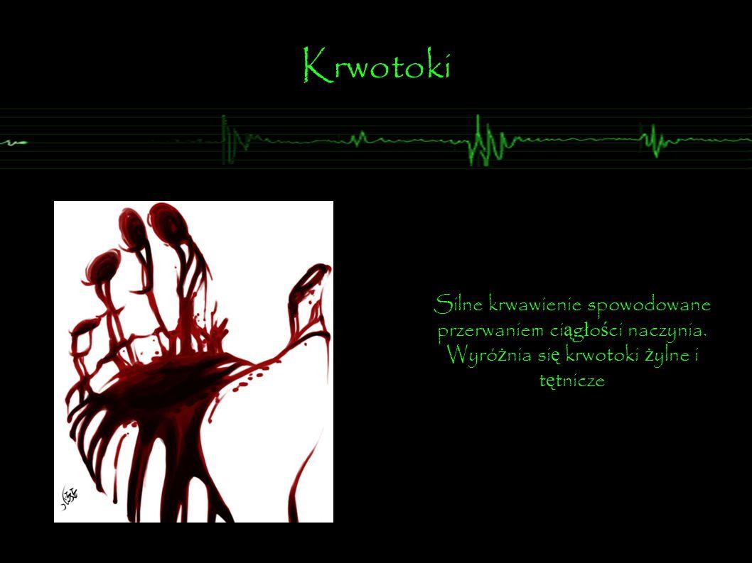 Silne krwawienie spowodowane przerwaniem ci ą g ł o ś ci naczynia. Wyró ż nia si ę krwotoki ż ylne i t ę tnicze Krwotoki