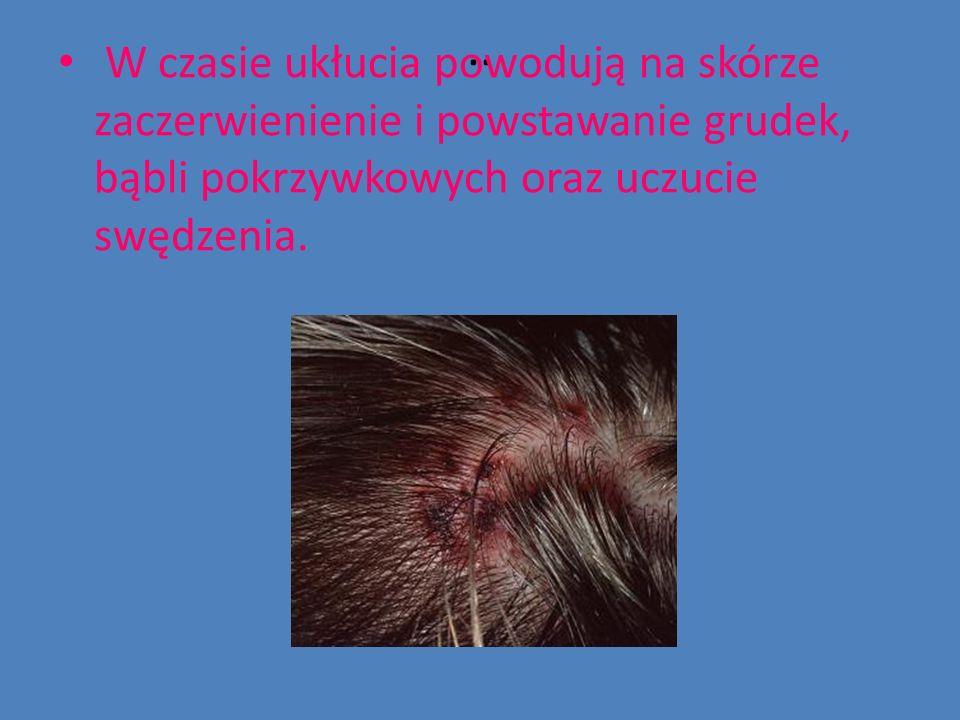 .. W czasie ukłucia powodują na skórze zaczerwienienie i powstawanie grudek, bąbli pokrzywkowych oraz uczucie swędzenia.
