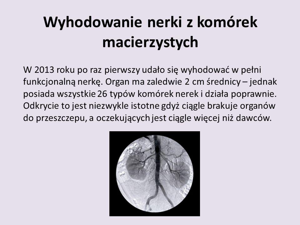Wyhodowanie nerki z komórek macierzystych W 2013 roku po raz pierwszy udało się wyhodować w pełni funkcjonalną nerkę.