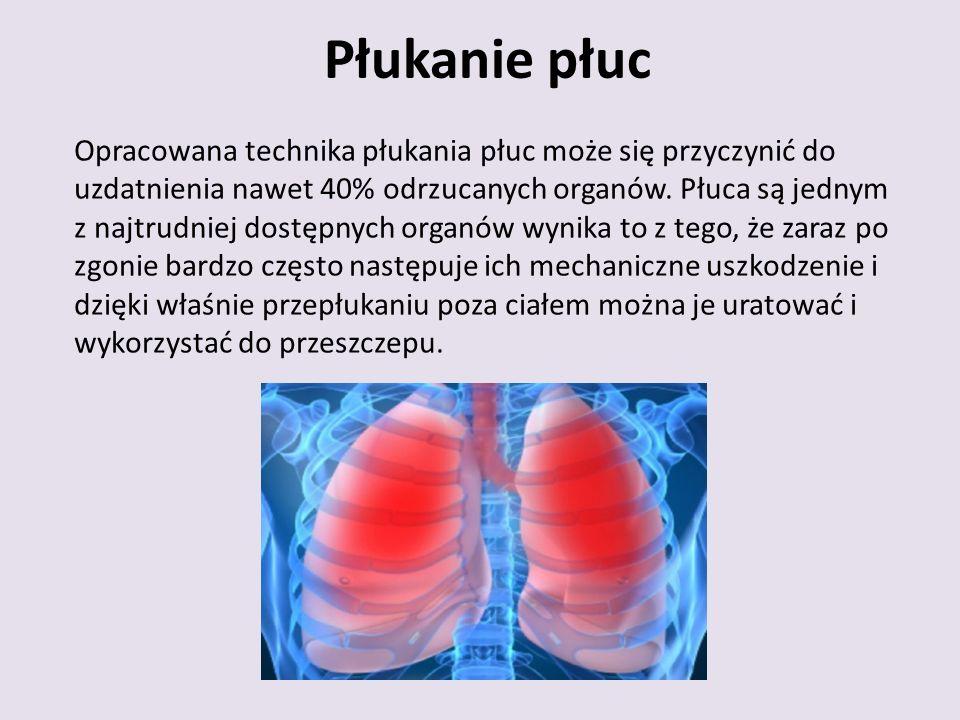 Płukanie płuc Opracowana technika płukania płuc może się przyczynić do uzdatnienia nawet 40% odrzucanych organów.