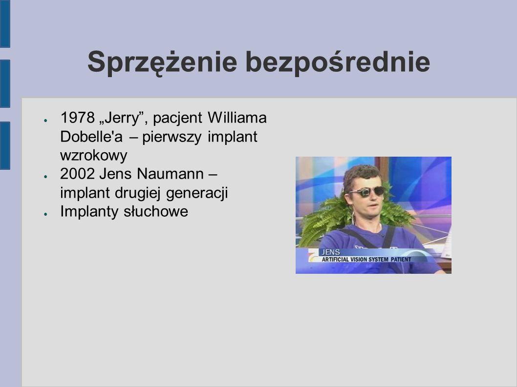 """Sprzężenie bezpośrednie ● 1978 """"Jerry , pacjent Williama Dobelle a – pierwszy implant wzrokowy ● 2002 Jens Naumann – implant drugiej generacji ● Implanty słuchowe"""