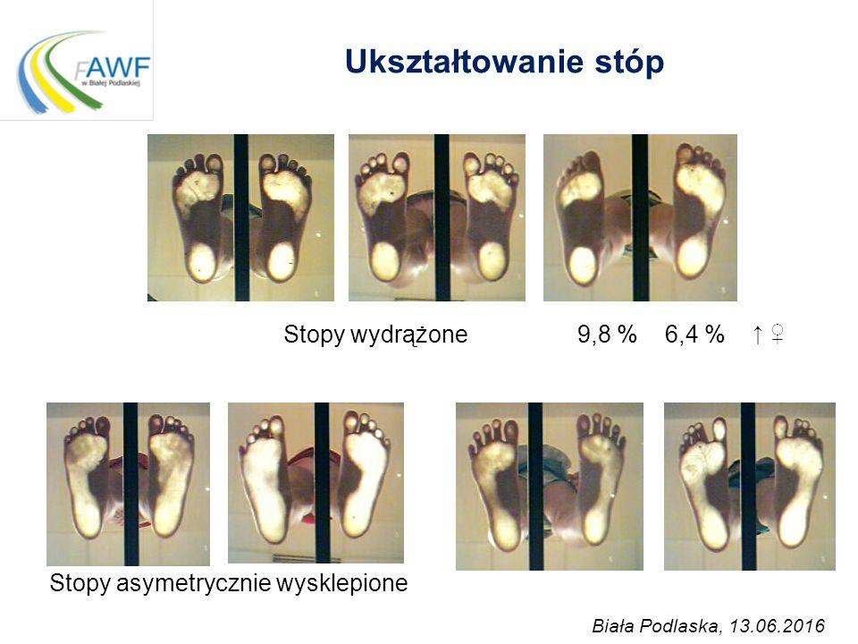 Ukształtowanie stóp Stopy wydrążone 9,8 % 6,4 % ↑ ♀ Stopy asymetrycznie wysklepione Biała Podlaska, 13.06.2016