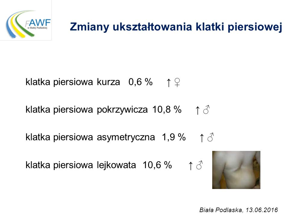 Zmiany ukształtowania klatki piersiowej klatka piersiowa kurza 0,6 % ↑ ♀ klatka piersiowa pokrzywicza 10,8 % ↑ ♂ klatka piersiowa asymetryczna 1,9 % ↑
