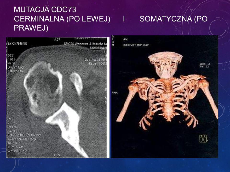 MUTACJA CDC73 GERMINALNA (PO LEWEJ) I SOMATYCZNA (PO PRAWEJ)