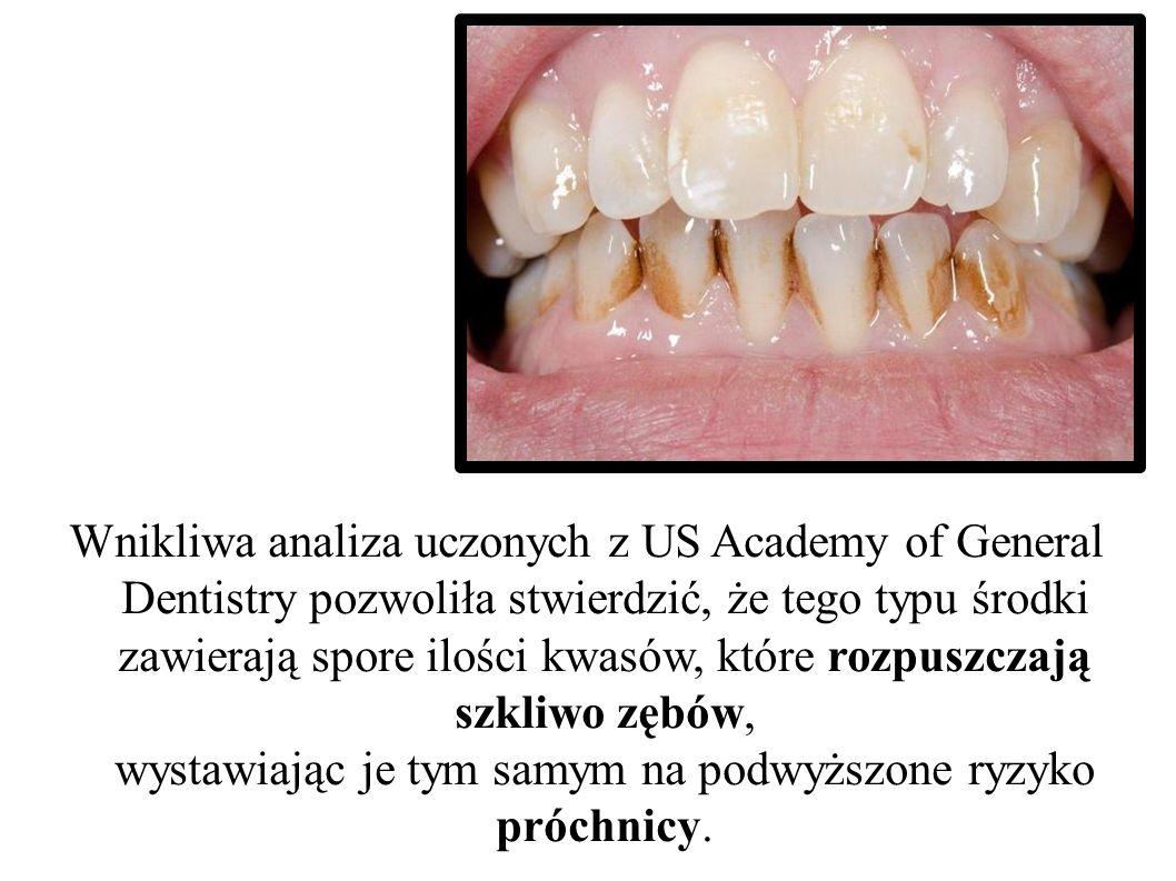 Wnikliwa analiza uczonych z US Academy of General Dentistry pozwoliła stwierdzić, że tego typu środki zawierają spore ilości kwasów, które rozpuszczaj