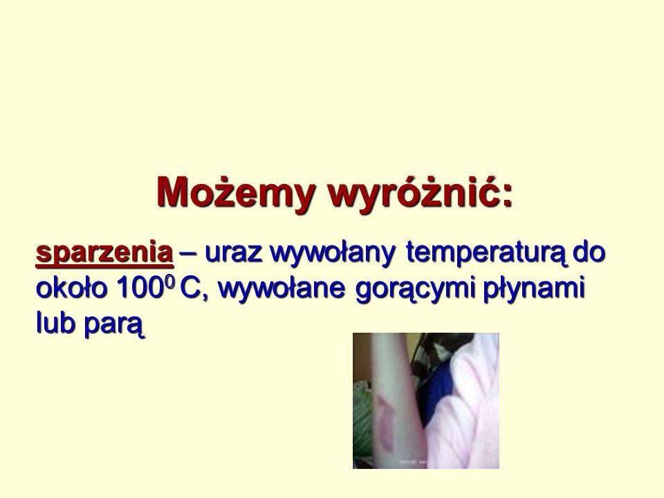 Możemy wyróżnić: sparzenia – uraz wywołany temperaturą do około 100 0 C, wywołane gorącymi płynami lub parą