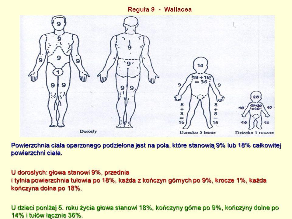 Reguła 9 - Wallacea Powierzchnia ciała oparzonego podzielona jest na pola, które stanowią 9% lub 18% całkowitej powierzchni ciała.