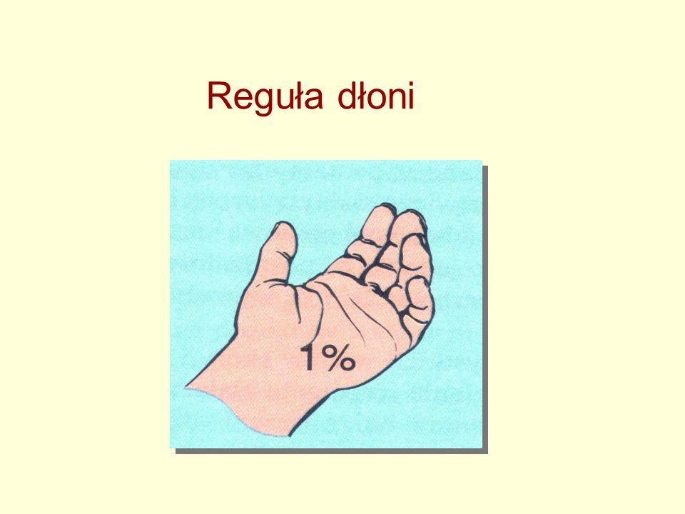 Reguła dłoni