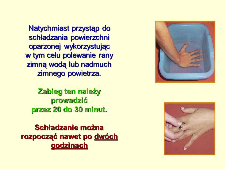 Natychmiast przystąp do schładzania powierzchni oparzonej wykorzystując w tym celu polewanie rany zimną wodą lub nadmuch zimnego powietrza.