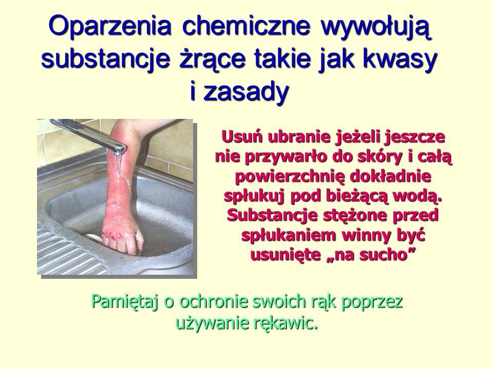 Oparzenia chemiczne wywołują substancje żrące takie jak kwasy i zasady Usuń ubranie jeżeli jeszcze nie przywarło do skóry i całą powierzchnię dokładnie spłukuj pod bieżącą wodą.