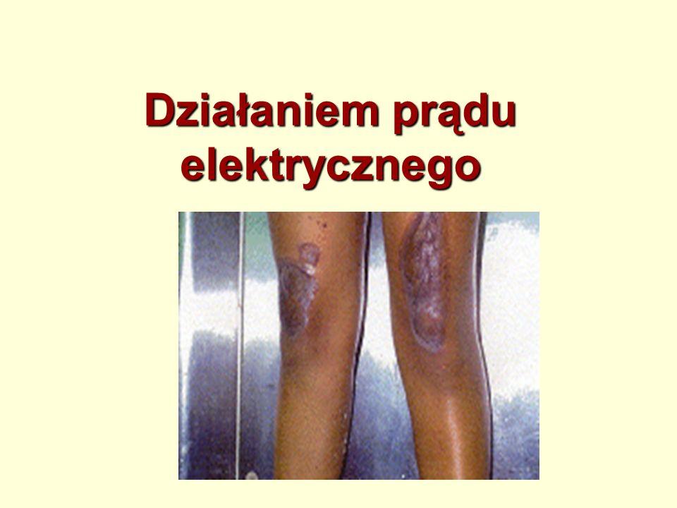 Tarciem silne lub długotrwałe pocieranie skóry