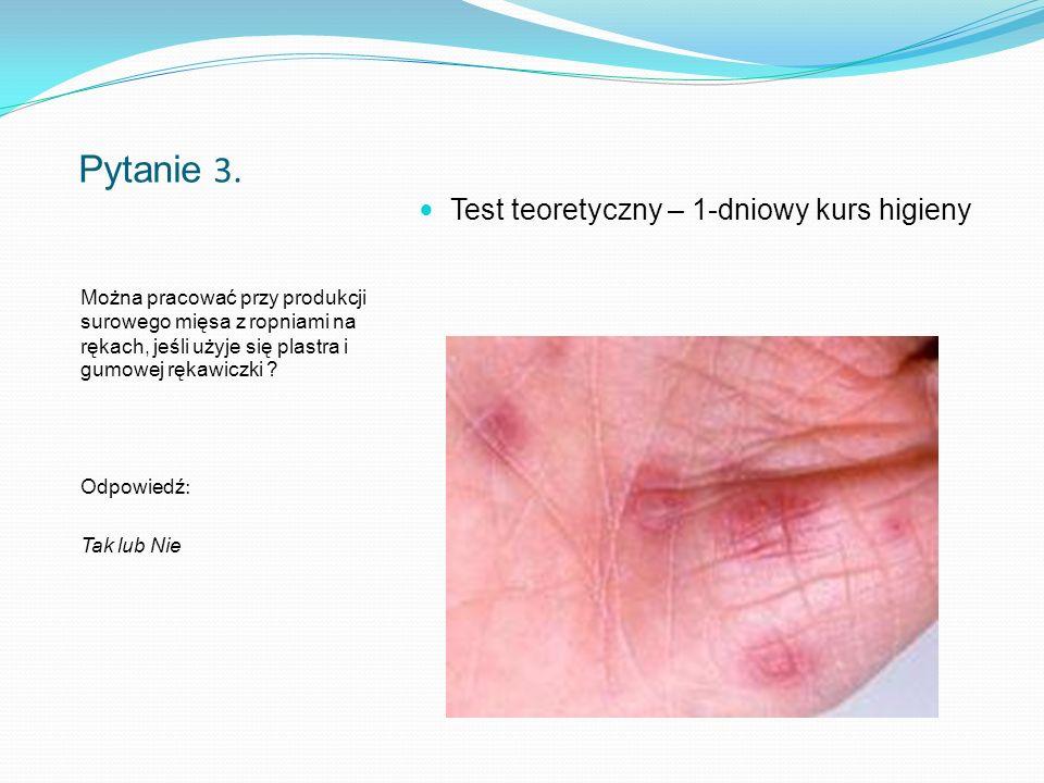 Pytanie 24.Masz obowiązek poinformować zakład, jeśli cierpisz na zakaźną chorobę skóry .