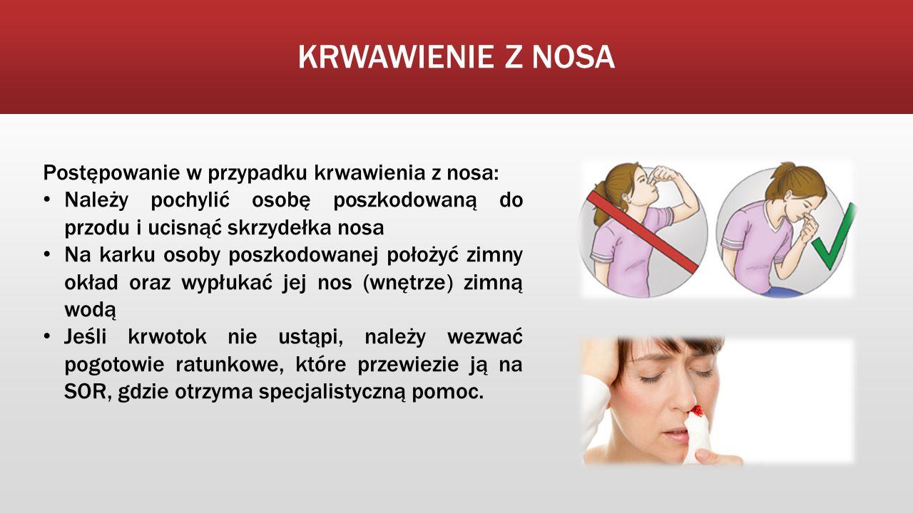 KRWAWIENIE Z NOSA Postępowanie w przypadku krwawienia z nosa: Należy pochylić osobę poszkodowaną do przodu i ucisnąć skrzydełka nosa Na karku osoby poszkodowanej położyć zimny okład oraz wypłukać jej nos (wnętrze) zimną wodą Jeśli krwotok nie ustąpi, należy wezwać pogotowie ratunkowe, które przewiezie ją na SOR, gdzie otrzyma specjalistyczną pomoc.