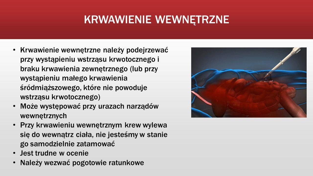 Krwawienie wewnętrzne należy podejrzewać przy wystąpieniu wstrząsu krwotocznego i braku krwawienia zewnętrznego (lub przy wystąpieniu małego krwawieni