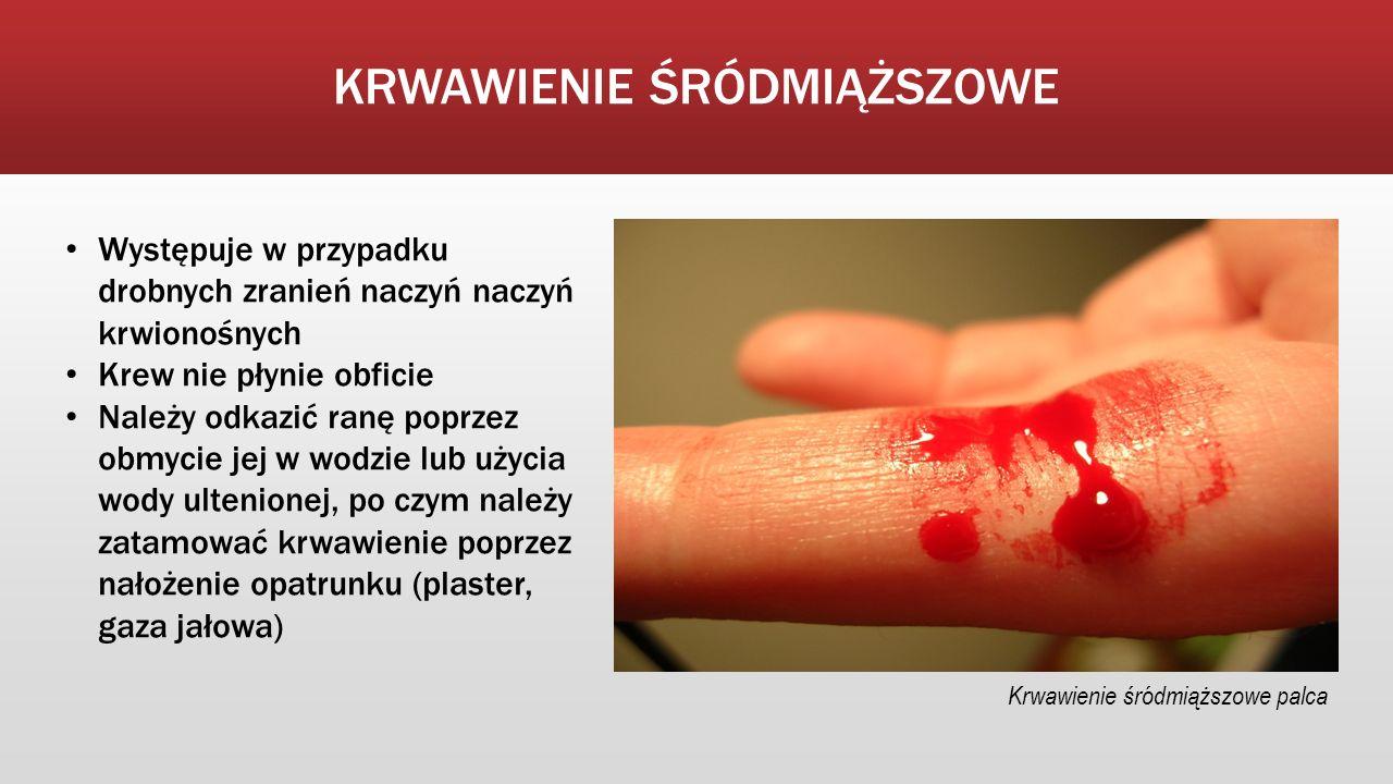 KRWAWIENIE ŚRÓDMIĄŻSZOWE Występuje w przypadku drobnych zranień naczyń naczyń krwionośnych Krew nie płynie obficie Należy odkazić ranę poprzez obmycie jej w wodzie lub użycia wody ultenionej, po czym należy zatamować krwawienie poprzez nałożenie opatrunku (plaster, gaza jałowa) Krwawienie śródmiąższowe palca