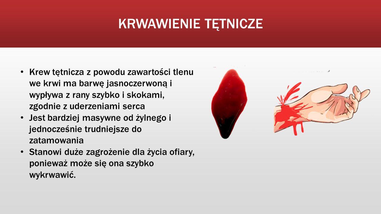 KRWAWIENIE TĘTNICZE Krew tętnicza z powodu zawartości tlenu we krwi ma barwę jasnoczerwoną i wypływa z rany szybko i skokami, zgodnie z uderzeniami se