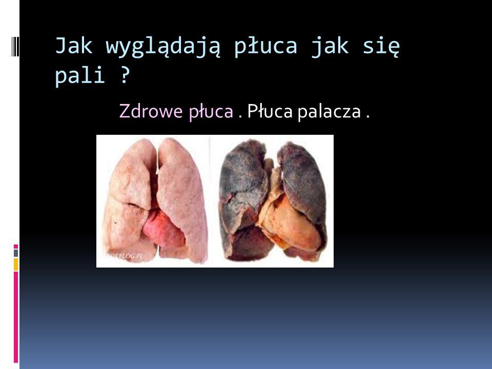 Jak wyglądają płuca jak się pali ? Zdrowe płuca. Płuca palacza.