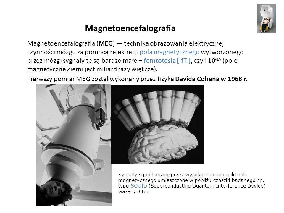Magnetoencefalografia Magnetoencefalografia (MEG) technika obrazowania elektrycznej czynności mózgu za pomocą rejestracji pola magnetycznego wytworzon