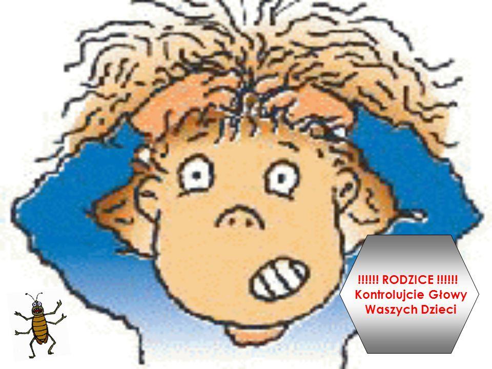 !!!!!! RODZICE !!!!!! Kontrolujcie Głowy Waszych Dzieci