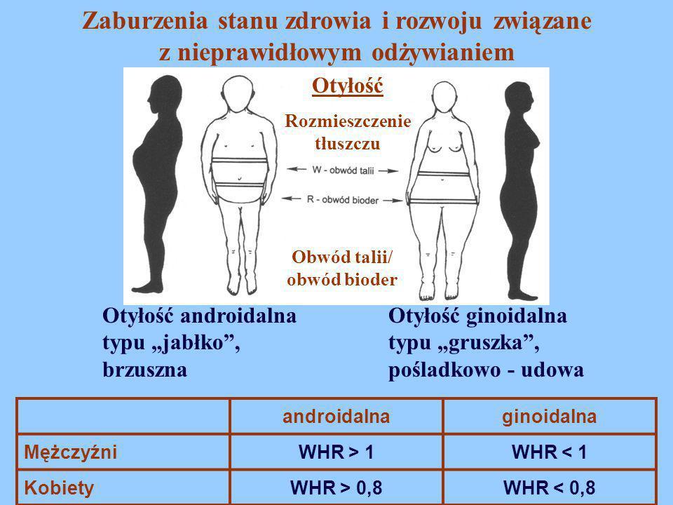 """Zaburzenia stanu zdrowia i rozwoju związane z nieprawidłowym odżywianiem Otyłość Otyłość androidalna typu """"jabłko"""", brzuszna Otyłość ginoidalna typu """""""